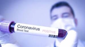 الأقنعة للوقاية من انتشار الفيروسات ـ5